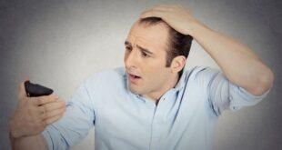 کاشت مو درد دارد؟